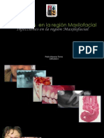 non odontogenic maxillofacial infection infecciones no odontogenicas maxilofacial