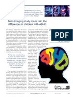 Brain Imaging Study Looks Into the Differences in Children With ADHD