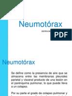 Neumotorax Alfio