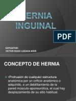 Hernia Inguinal Verdadero 2010