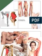 Topografia durerilor musculare