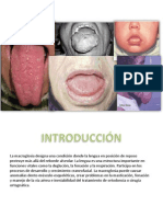 macroglosia.pptx