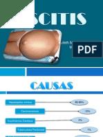 Ascitis diapositivas
