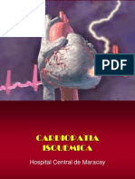 Cardiopatia Isquemica II