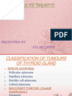 Tumours of Thyroid Gland