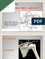 Lesiones Del Labrum