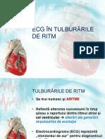 AMG 02 - ECG Patologic