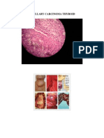 Papillary Carcinoma Thyroid