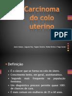 Carcinoma Apresentacao1