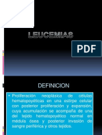 LEUCEMIAS presentacion
