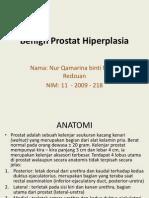 49016331 Benign Prostat Hiperplasia