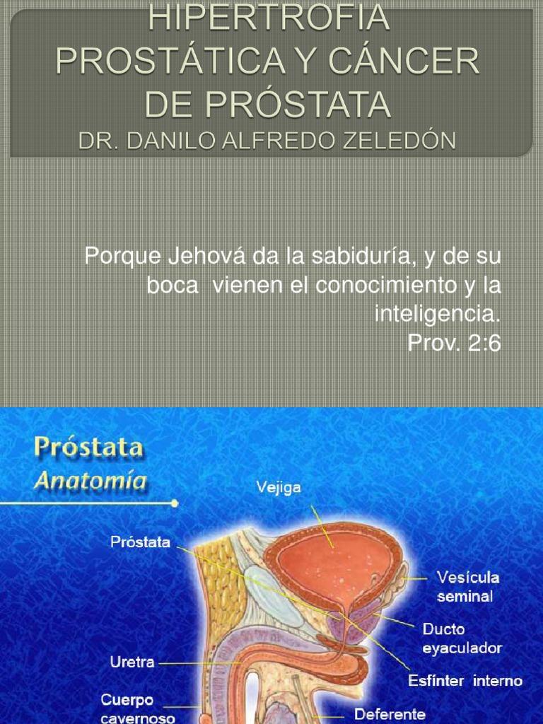 trans que vienen con la próstata