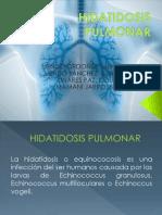 SEMINARIO HIDATIDOSIS PULMONAR