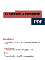 Amputation and Prosthetics
