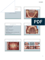 Lecture 7 Anterior & Posterior Crossbites (6 Per Page) [Compatibility Mode]