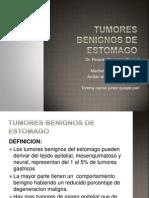 Tumores Benignos de Estomago1