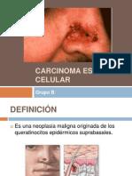Carcinoma Escamo Celular