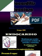 Endocarditis Infecciosa.pdf