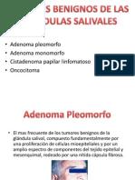 Tumores Benignos de Las Glandulas Salivales