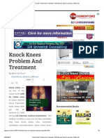 Knock Knees Problem and Treatment _ SSB Interview Tips & Coaching _ SSBCrack