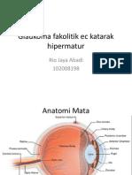 Glaukoma Fakolitik Ec Katarak Hipermatur