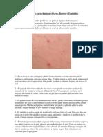 23 Remedios Caseros para eliminar el Acne.docx