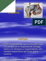 16. Artrosis