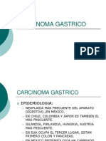 Carcinoma Gastrico Done