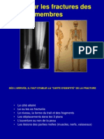1- Fractures généralités