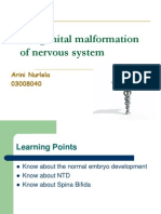Congenital Malformation of Nervous System Ppt Sesi 1