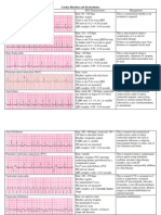 Cardiac Dysrhythmias