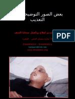 صور توضيحية لبعض آثار التعذيب