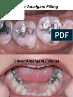 Dental Treatment Procedures