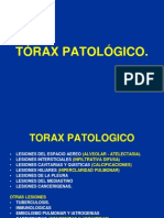 traxpatolgico-090820102105-phpapp02
