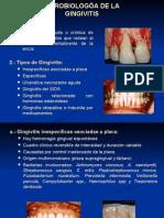 Microbiología de la Gingivitis