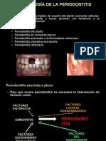 Microbiología de la Periodontitis