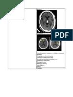 Ct Scan Brain