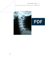 x ray spine