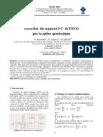 Détection du segment S-T de l'ECG par la spline quadratique