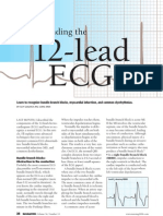 12 lead EKG interpretation part 2