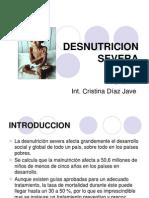 Definicion, Clinica y Fisiopatologia del Desnutrido Severo