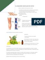 Remedios Naturales y Preparados Caseros Para Las Varices
