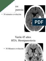 Neuro Practicos