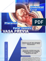 vasaprevia-110926011743-phpapp01