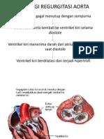 Patofisiologi Regurgitasi Aorta