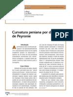 Pontodevista Peyronie Rj