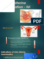Intra Uterine Insemination - IUI