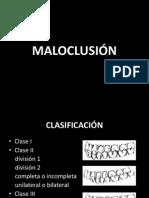 15447350 Maloclusiones I II III y MINSA