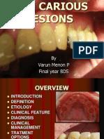 Non Carious Lesions