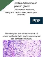 Pleomorphic Adenoma of Parotid Gland